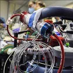 글로벌 체외 막 산소 ECMO 시스템 시장