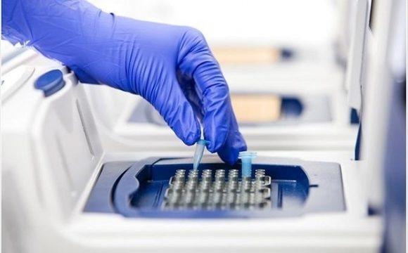 글로벌 PCR 기술 시장