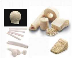 전 세계 척추 가공 뼈 동종이식 시장